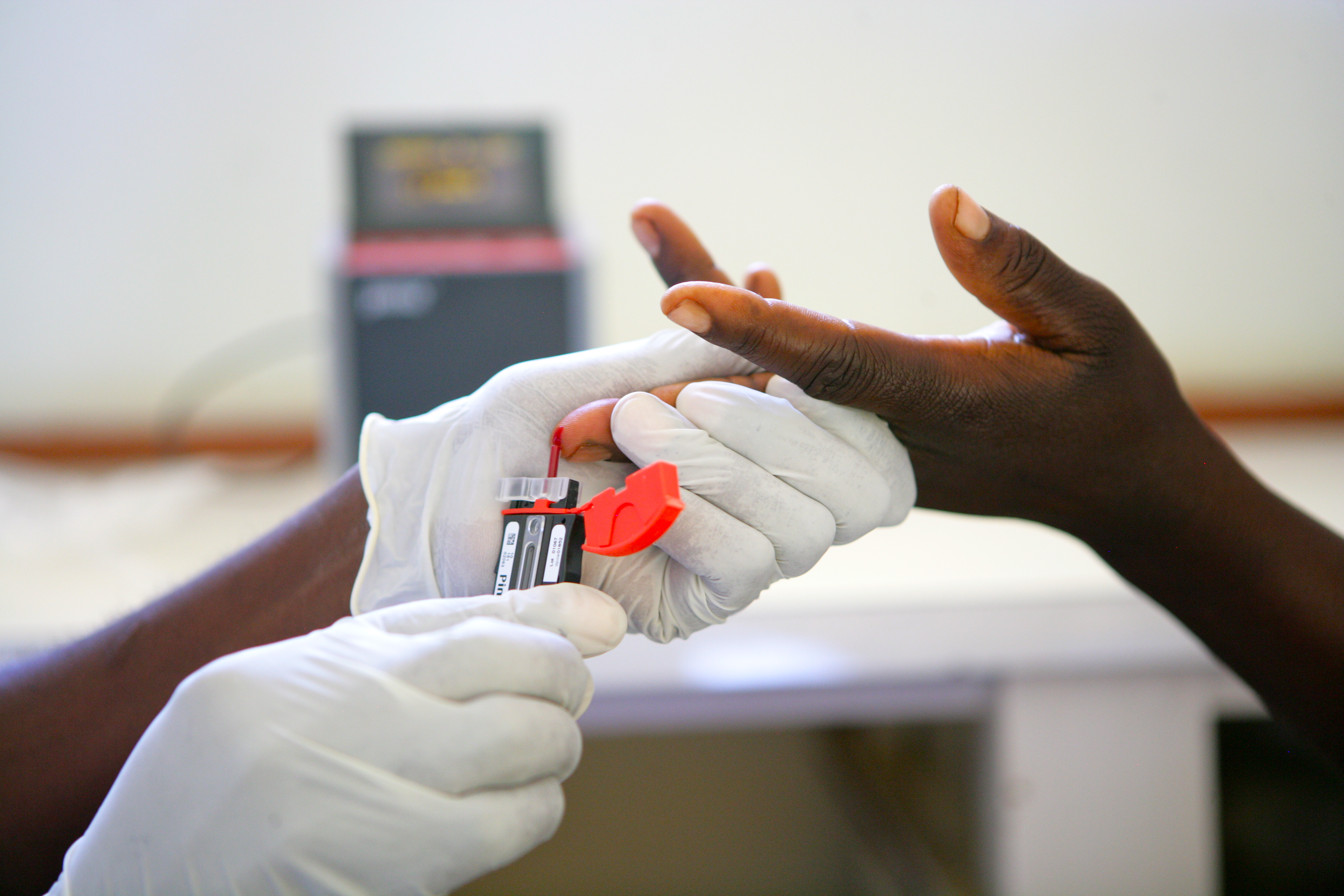 Image of collecting blood for HIV rapid test in Zimbabwe (©UNICEF/UNI106377/Pirozzi)